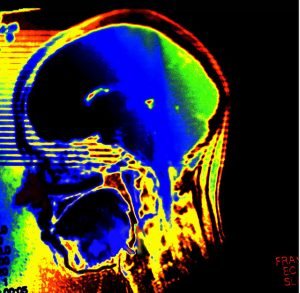 Het brein van blowers is beter bestand tegen hersenletsel dan dat van niet-blowers! [foto: Daniela Hartmann/Flickr]