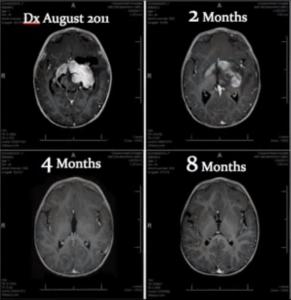 Hersenscans van een jonge kankerpatiënt die wietolie gebruikte. Na acht maanden was zijn tumor zo goed als verdwenen