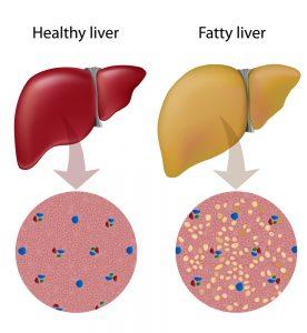 Overmatig alcoholgebruik kan vetophoping in de lever veroorzaken. Foto: shutterstock/Alila Medical Media