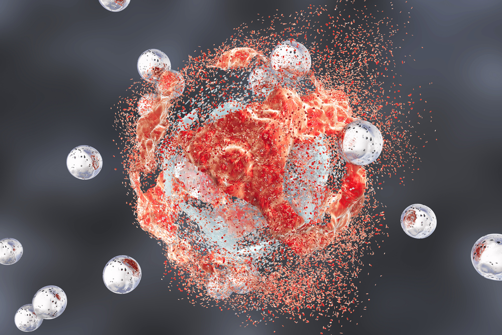 Kan cannabidiol (CBD) kanker behandelen? - Mediwietsite