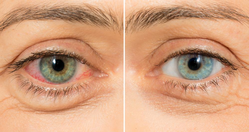 Rode ogen door cannabisolie of ander wiet-gebruik - Mediwietsite