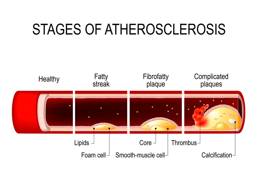 sporten en hoge bloeddruk
